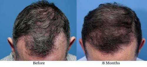 NeoGraft Hair Restoration Gallery - Patient 58490614 - Image 7