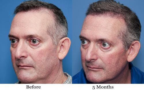 NeoGraft Hair Restoration Gallery - Patient 58490614 - Image 8