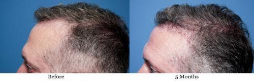 NeoGraft Hair Restoration Gallery - Patient 58490614 - Image 9
