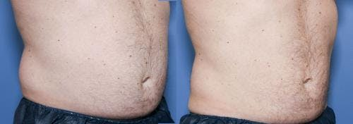 Body Gallery - Patient 58490613 - Image 3