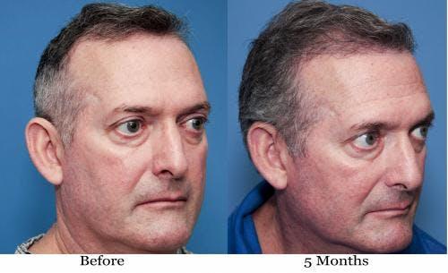 NeoGraft Hair Restoration Gallery - Patient 58490614 - Image 11