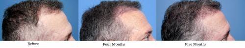 NeoGraft Hair Restoration Gallery - Patient 58490614 - Image 12