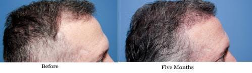 NeoGraft Hair Restoration Gallery - Patient 58490614 - Image 13