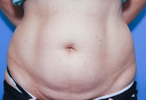 Body Gallery - Patient 58490616 - Image 1