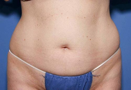 Body Gallery - Patient 58490616 - Image 2