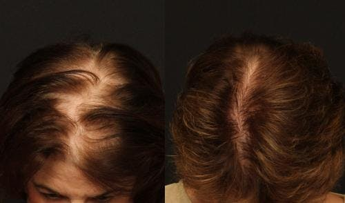 NeoGraft Hair Restoration Gallery - Patient 58490615 - Image 1