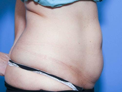 Body Gallery - Patient 58490616 - Image 3