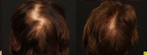 NeoGraft Hair Restoration Gallery - Patient 58490615 - Image 2