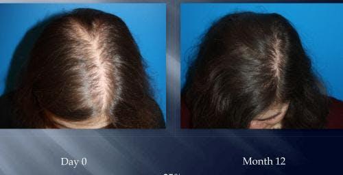 NeoGraft Hair Restoration Gallery - Patient 58490617 - Image 1