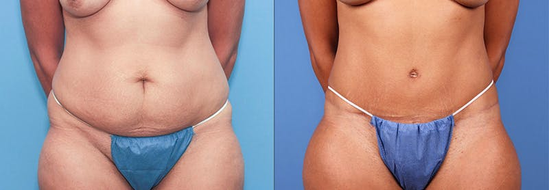 Tummy Tuck Gallery - Patient 66902222 - Image 1