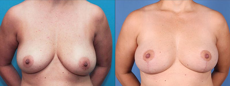 Breast Lift Gallery - Patient 66902451 - Image 1