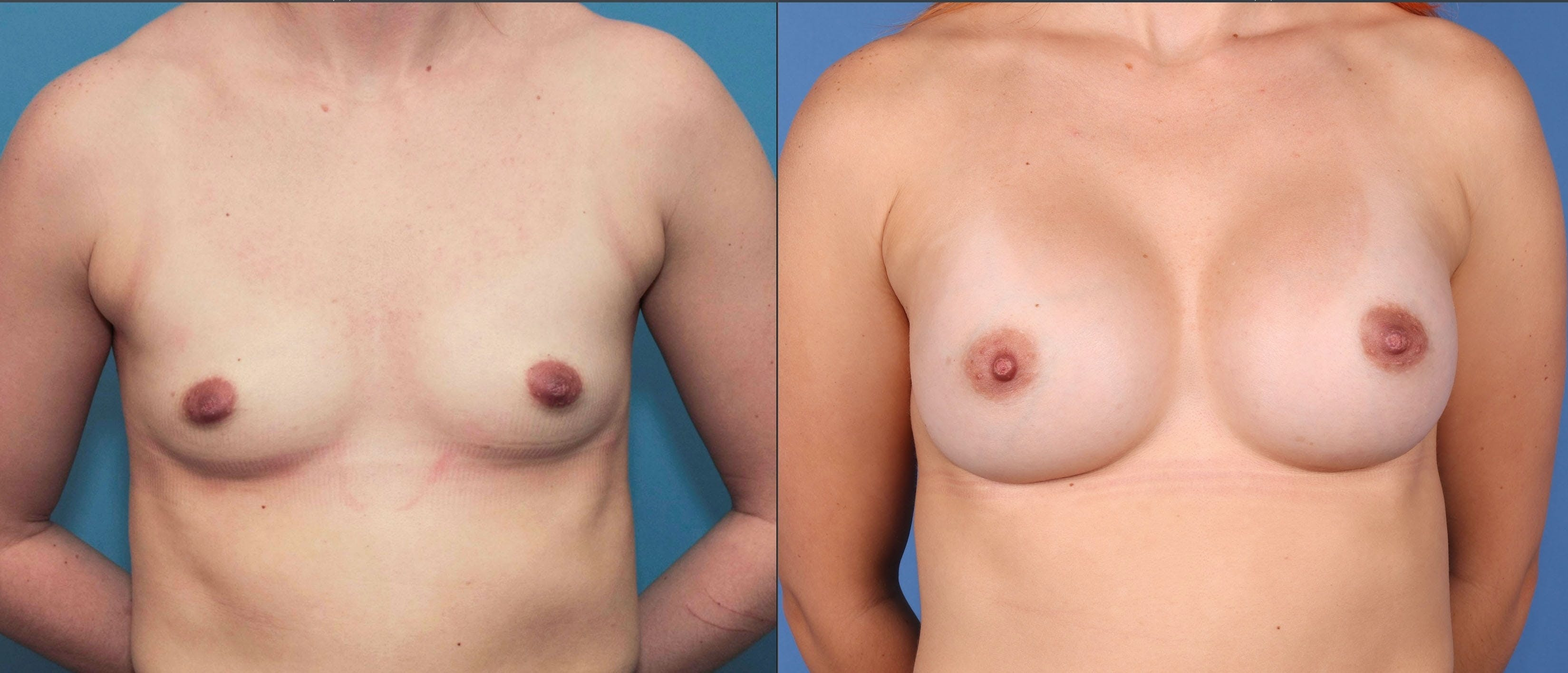 Breast Augmentation Gallery - Patient 67104594 - Image 1