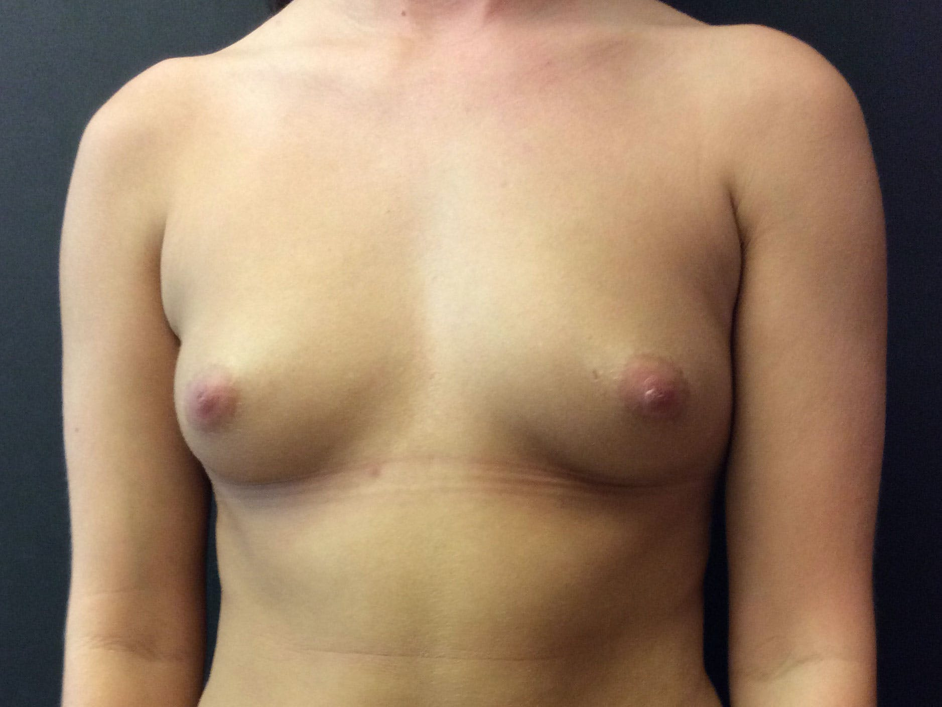 Breast Augmentation Gallery - Patient 56397872 - Image 1