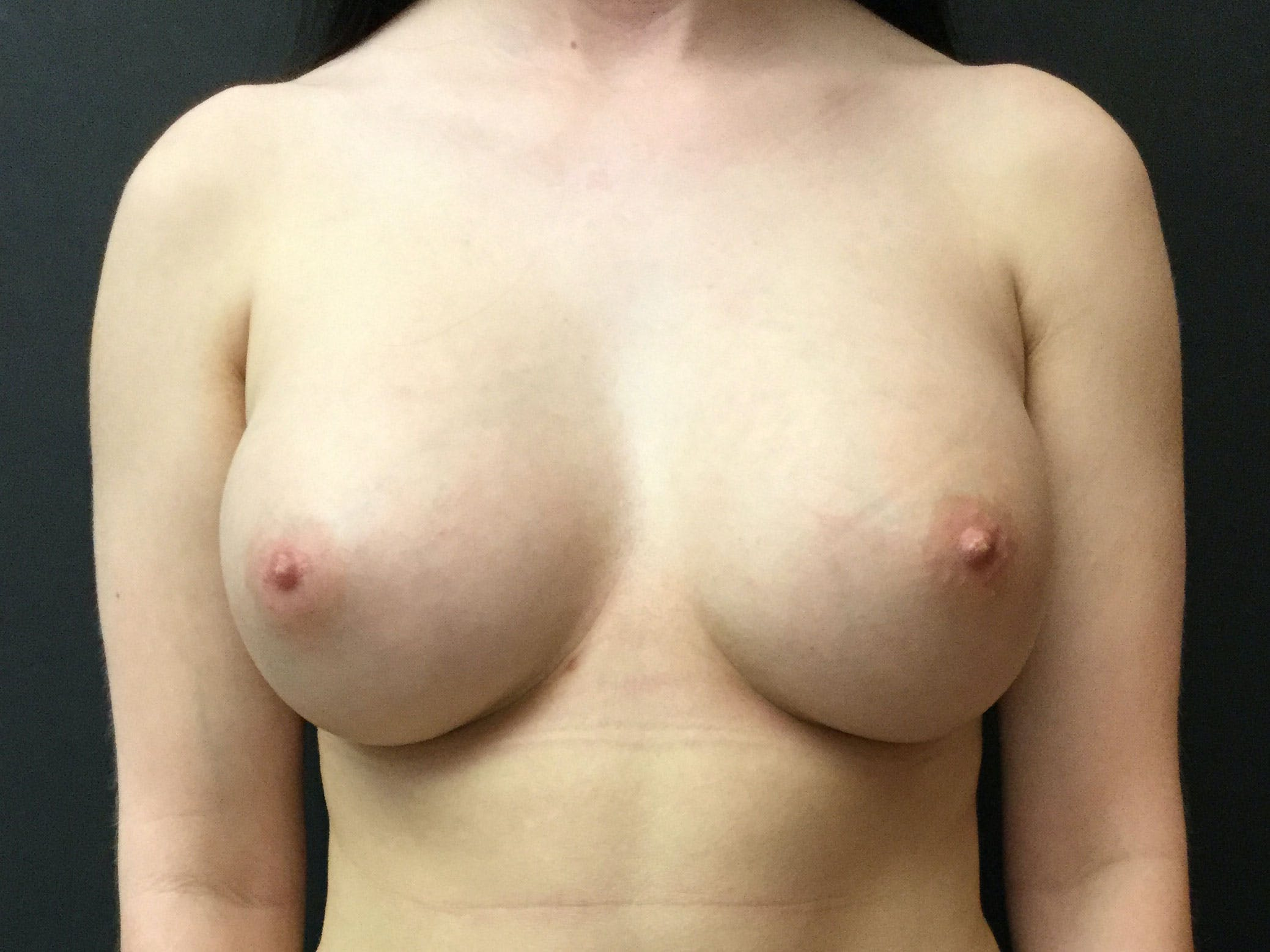 Breast Augmentation Gallery - Patient 56397872 - Image 2