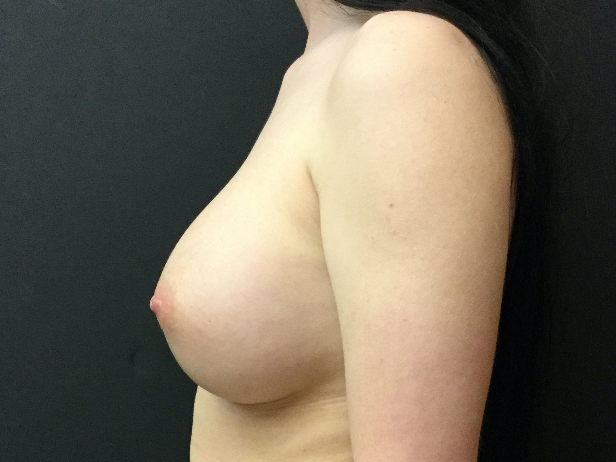 Breast Augmentation Gallery - Patient 56397872 - Image 4