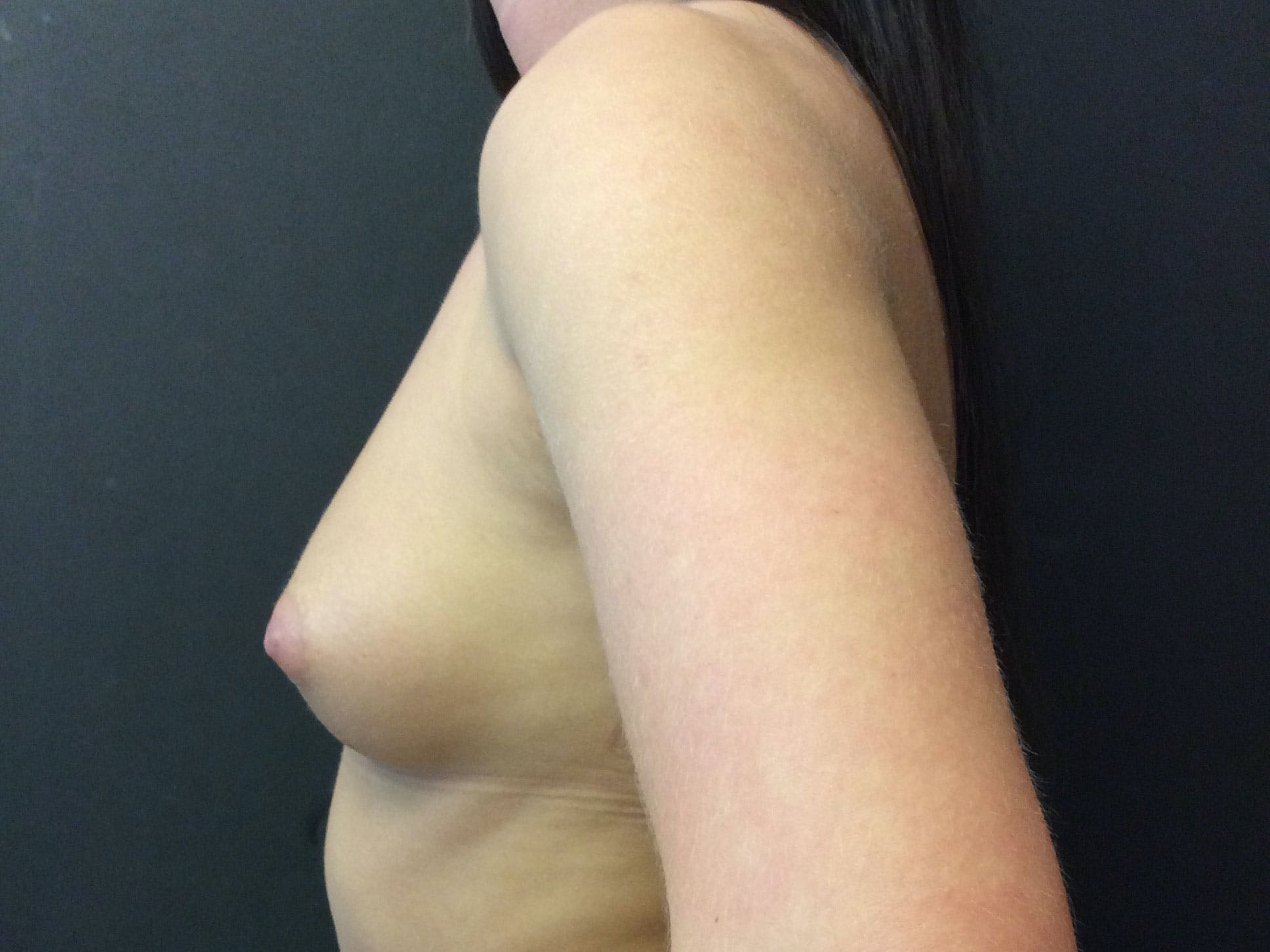 Breast Augmentation Gallery - Patient 56397872 - Image 3