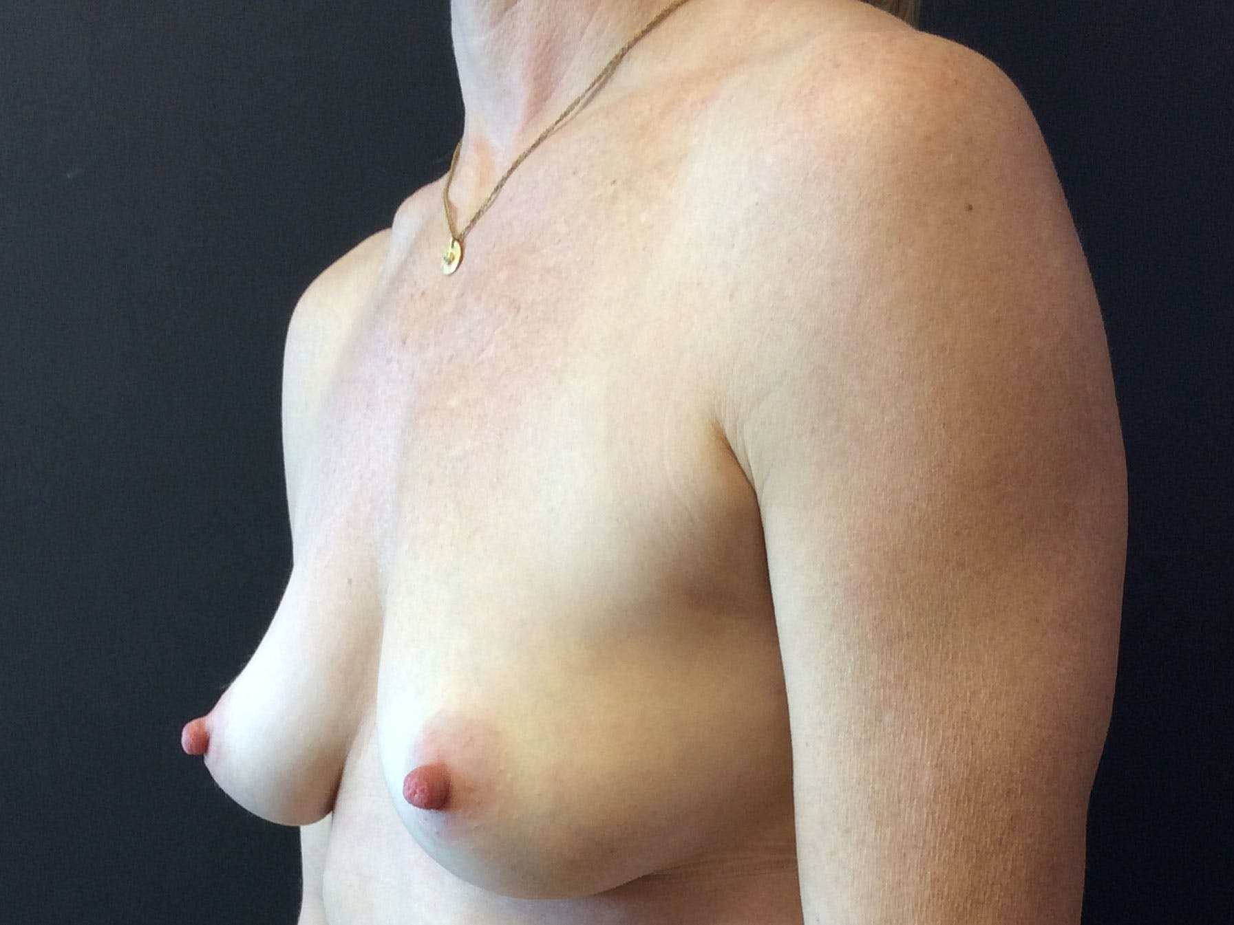 Breast Augmentation Gallery - Patient 56397873 - Image 3