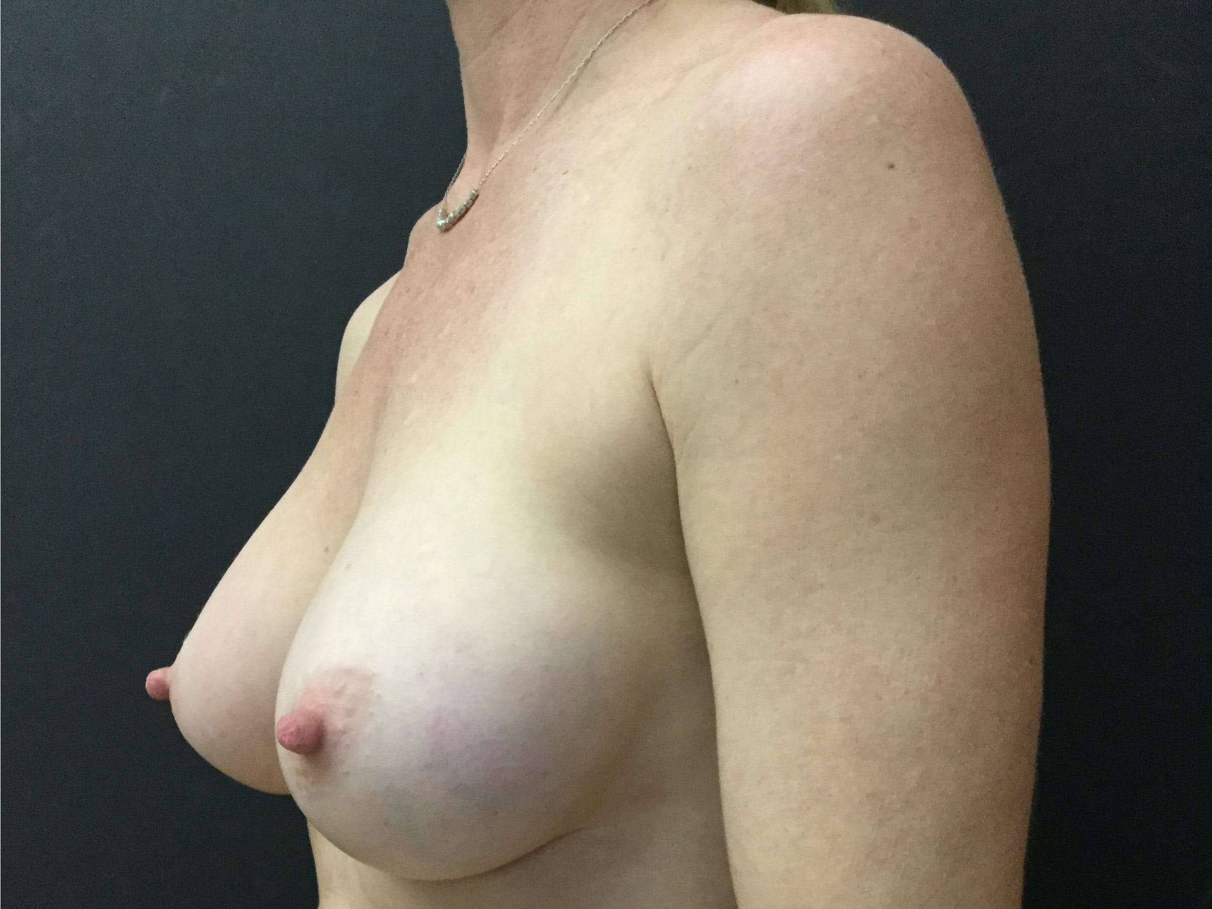 Breast Augmentation Gallery - Patient 56397873 - Image 4