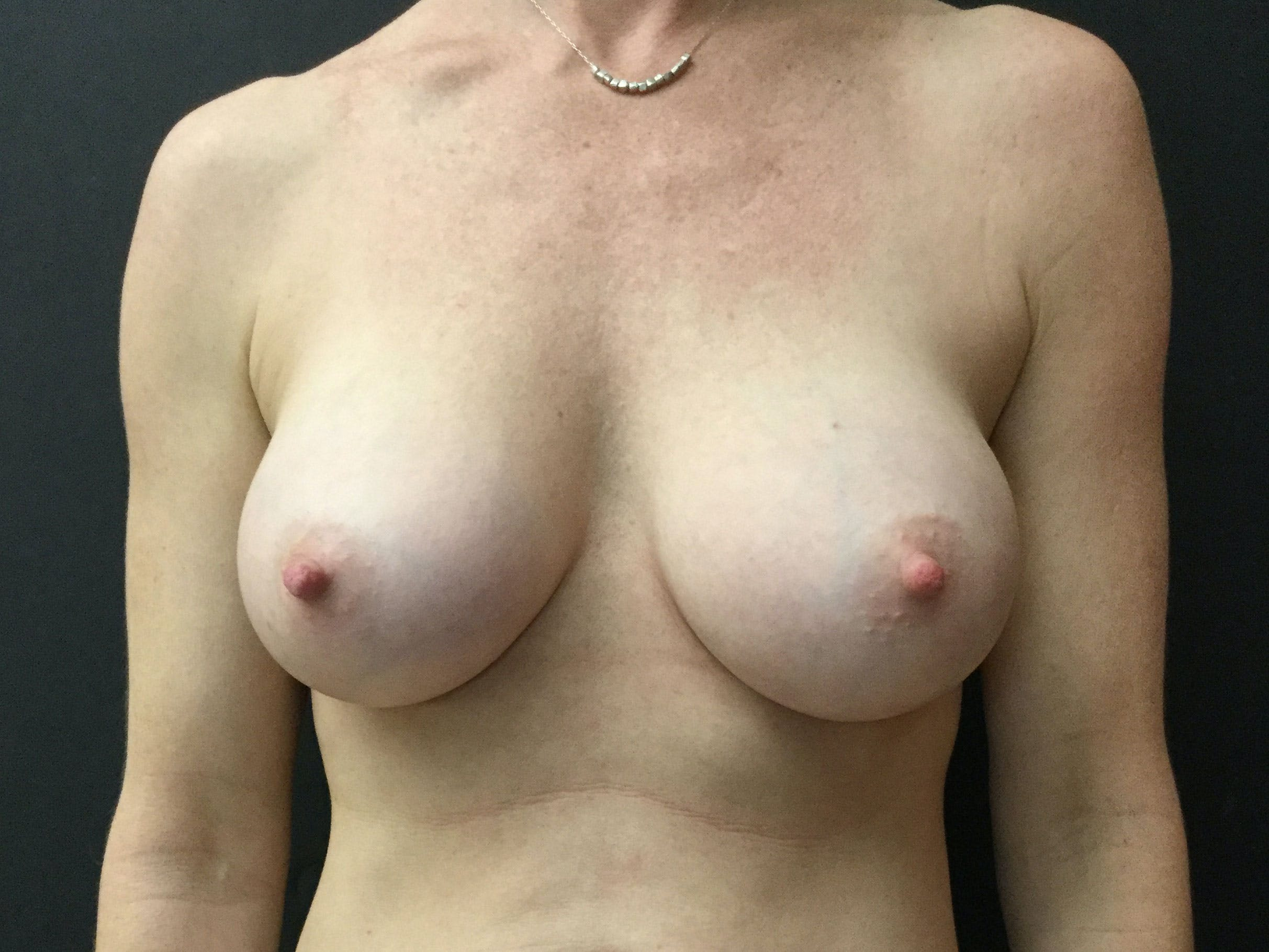 Breast Augmentation Gallery - Patient 56397873 - Image 2