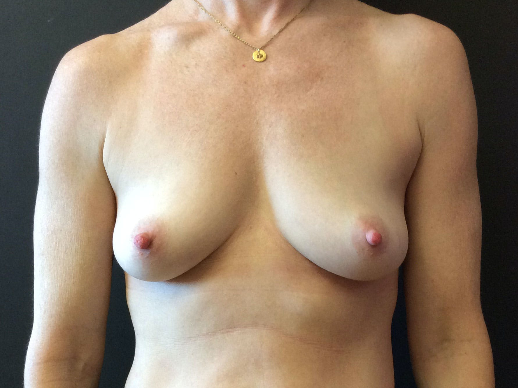 Breast Augmentation Gallery - Patient 56397873 - Image 1