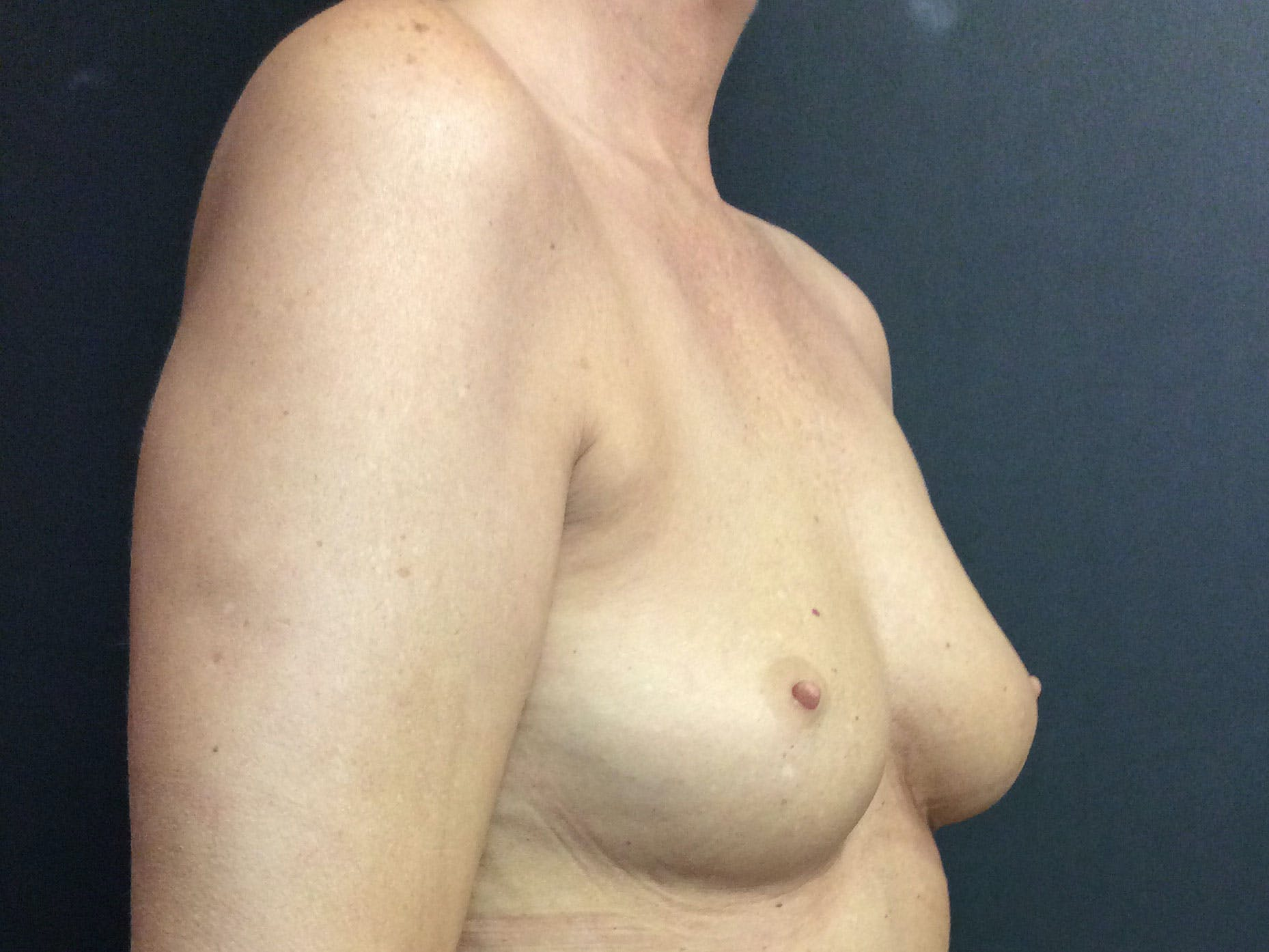 Breast Augmentation Gallery - Patient 56397874 - Image 3
