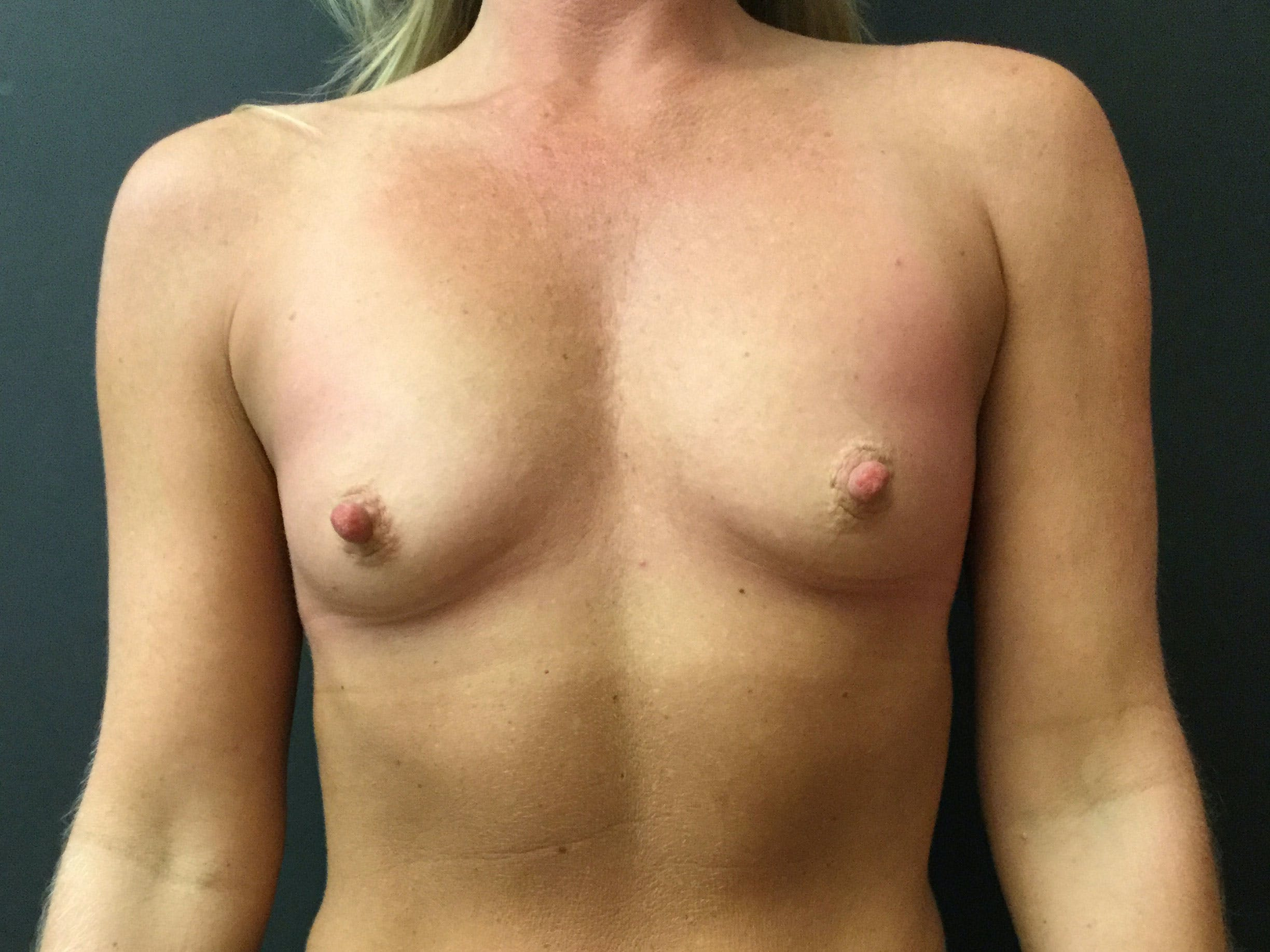 Breast Augmentation Gallery - Patient 56397875 - Image 1