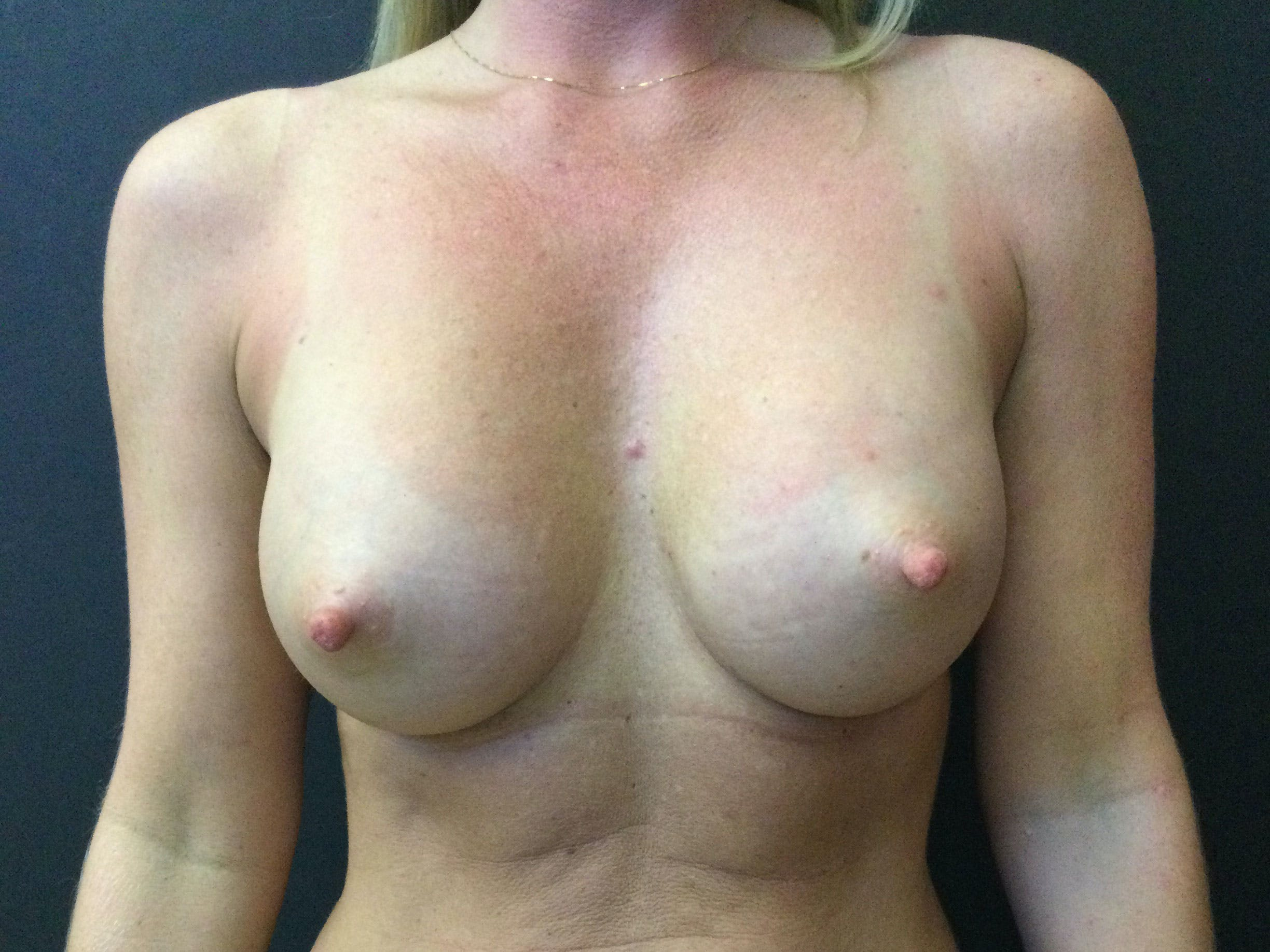 Breast Augmentation Gallery - Patient 56397875 - Image 2
