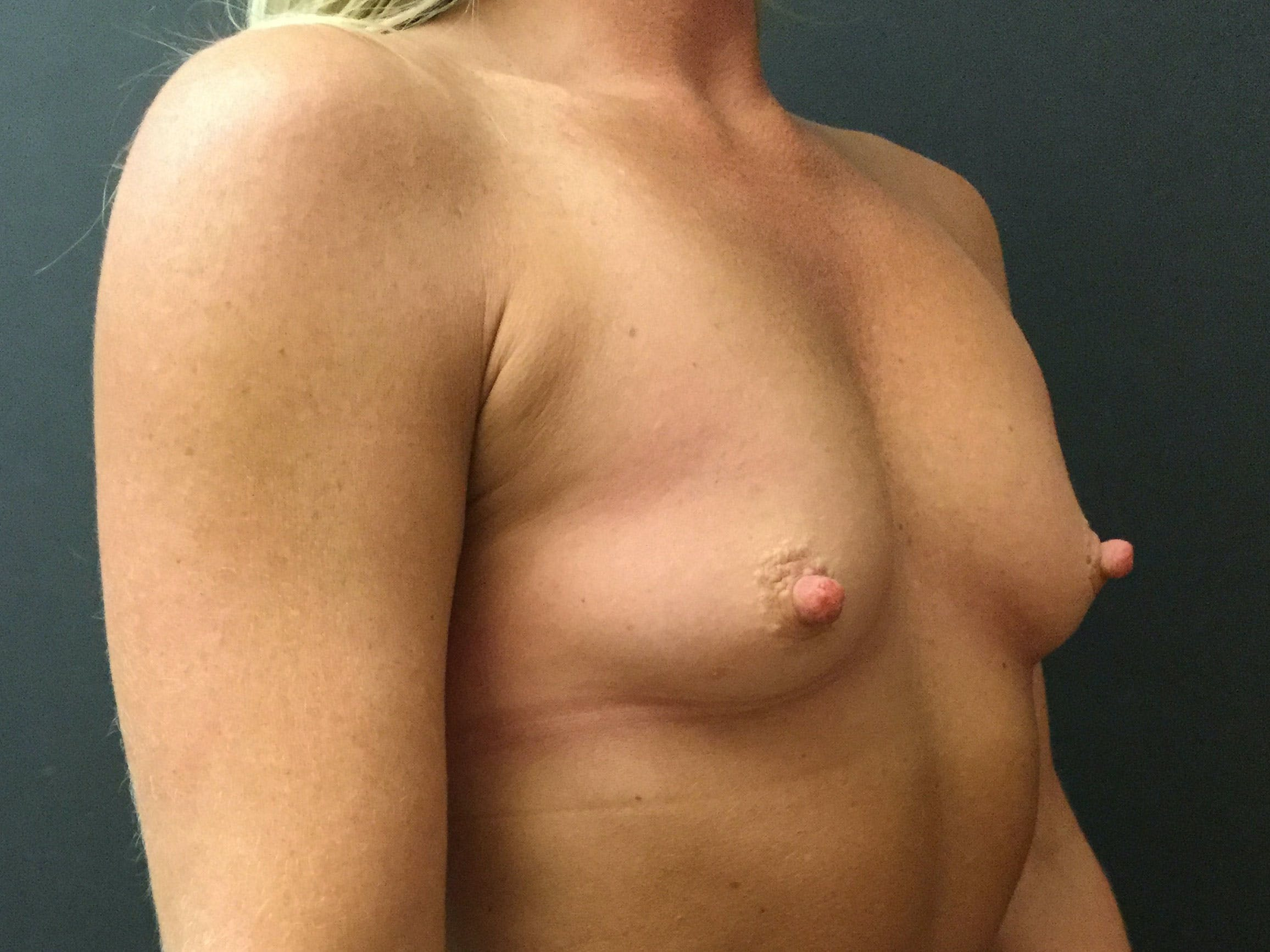Breast Augmentation Gallery - Patient 56397875 - Image 3