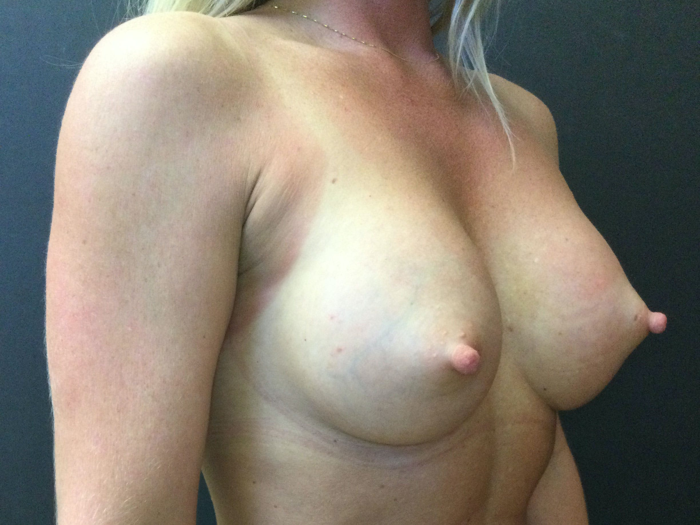 Breast Augmentation Gallery - Patient 56397875 - Image 4
