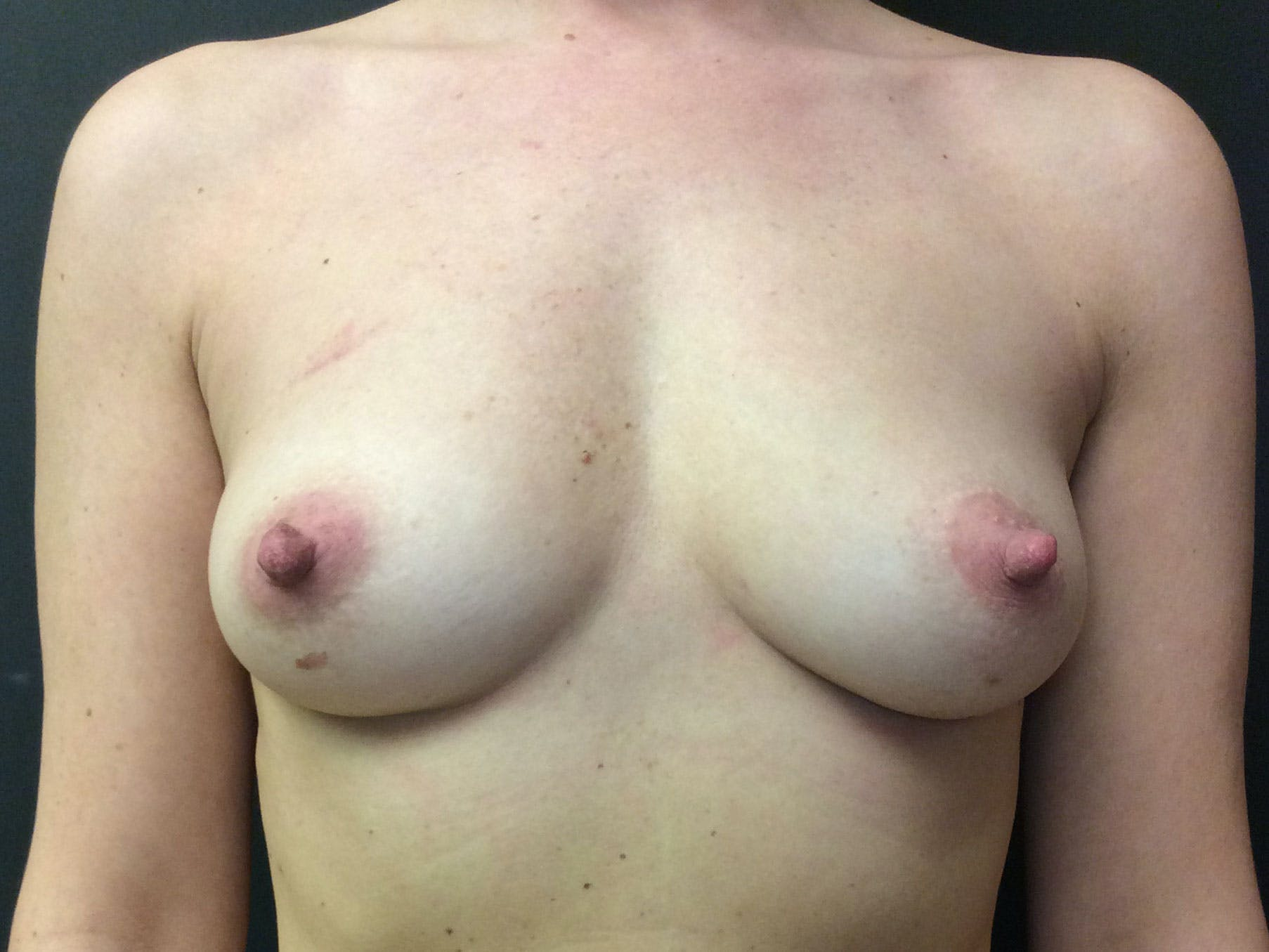 Breast Augmentation Gallery - Patient 56397876 - Image 1