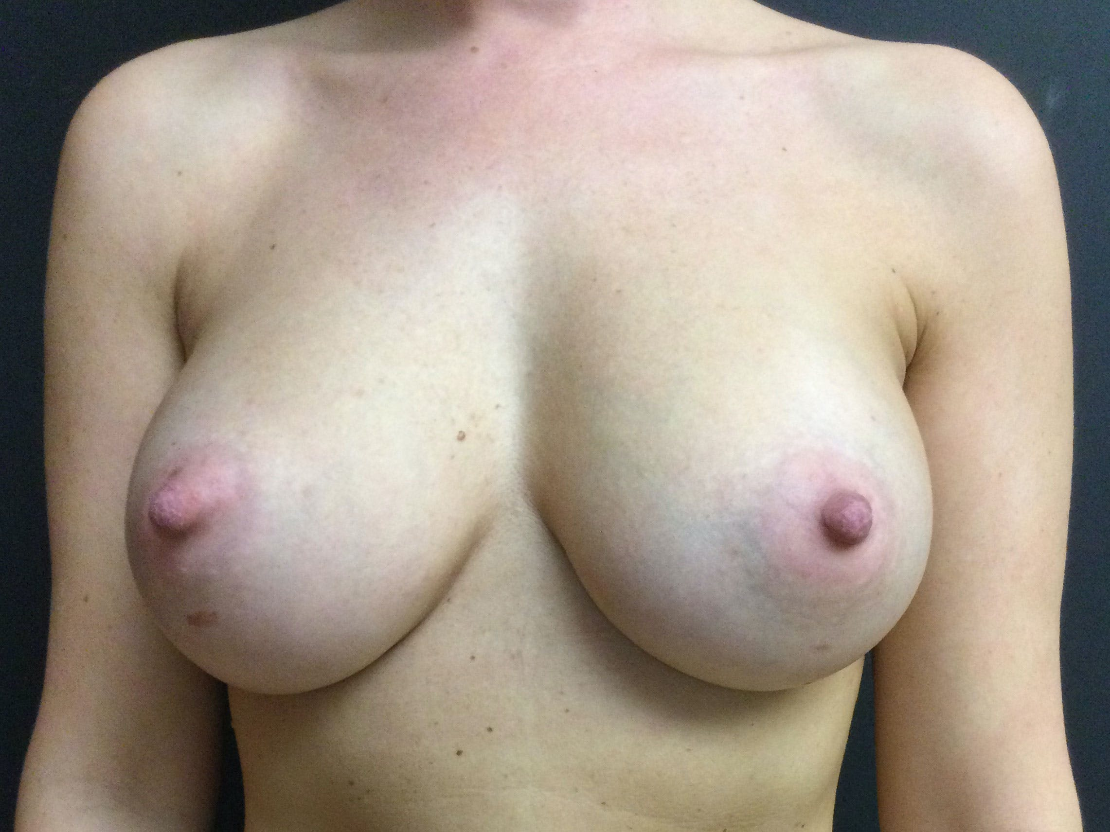 Breast Augmentation Gallery - Patient 56397876 - Image 2