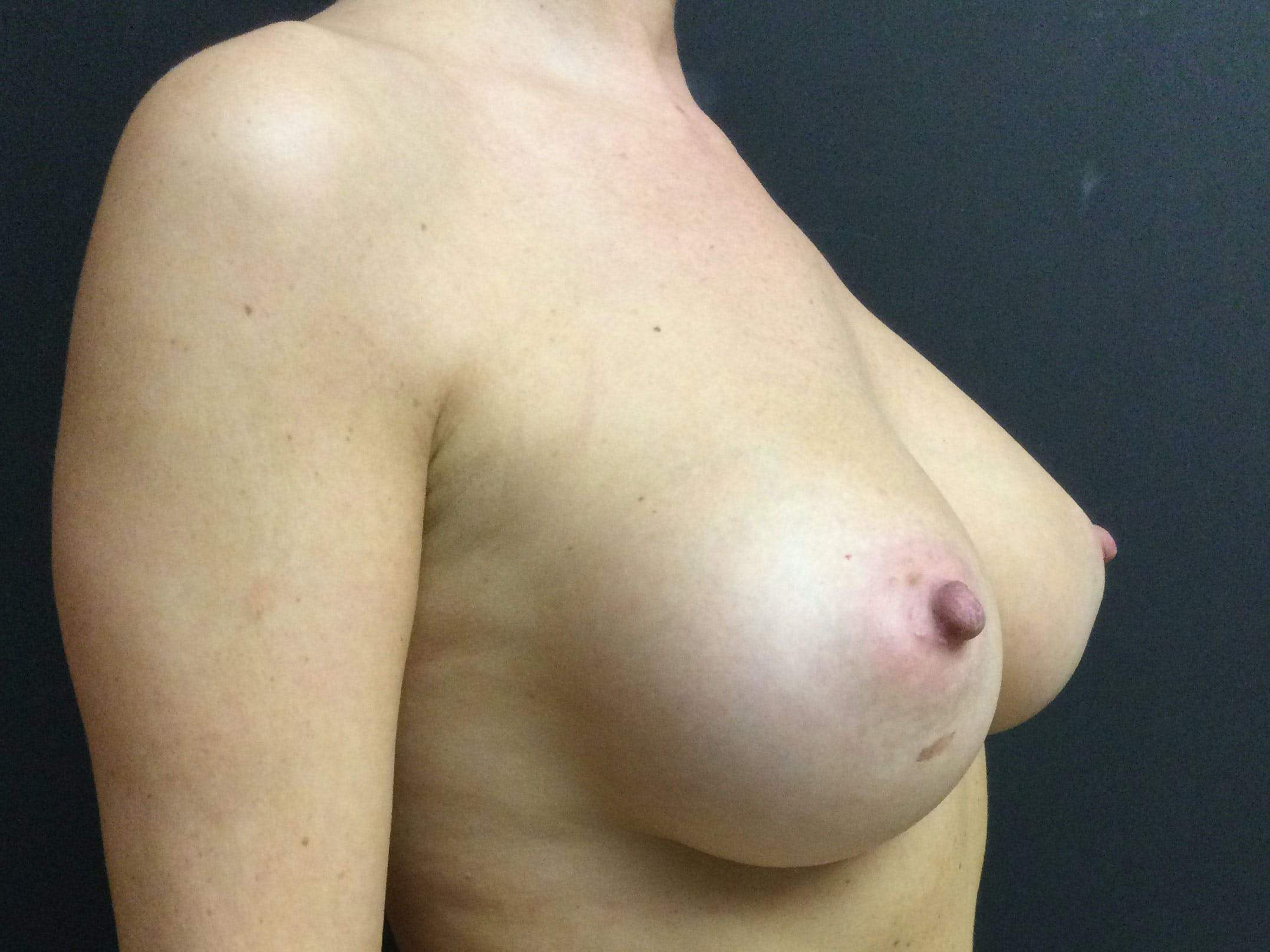 Breast Augmentation Gallery - Patient 56397876 - Image 4