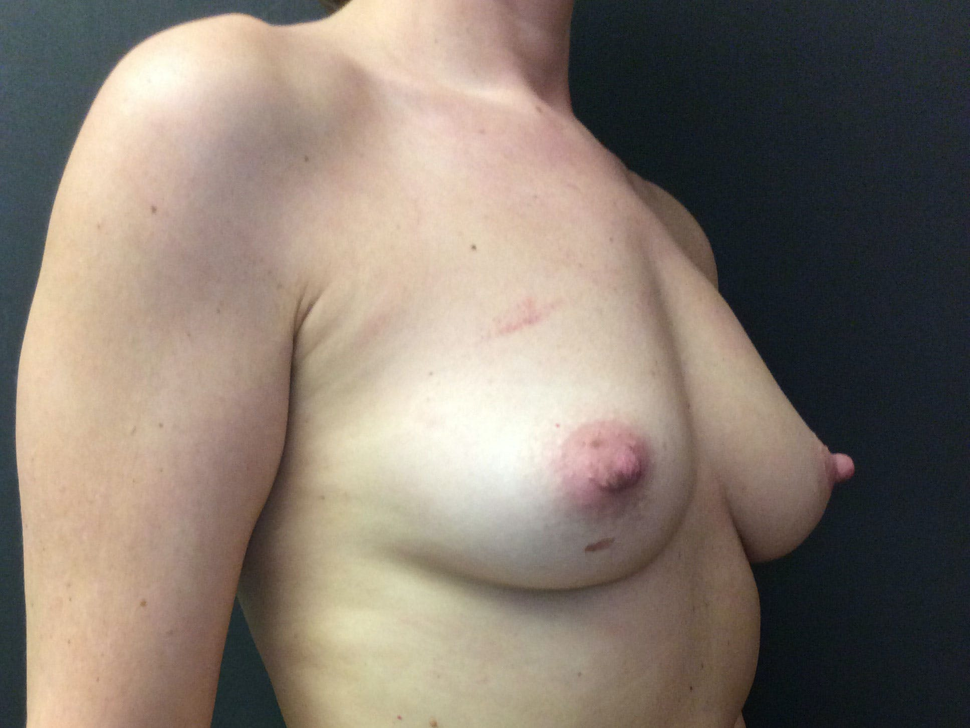 Breast Augmentation Gallery - Patient 56397876 - Image 3