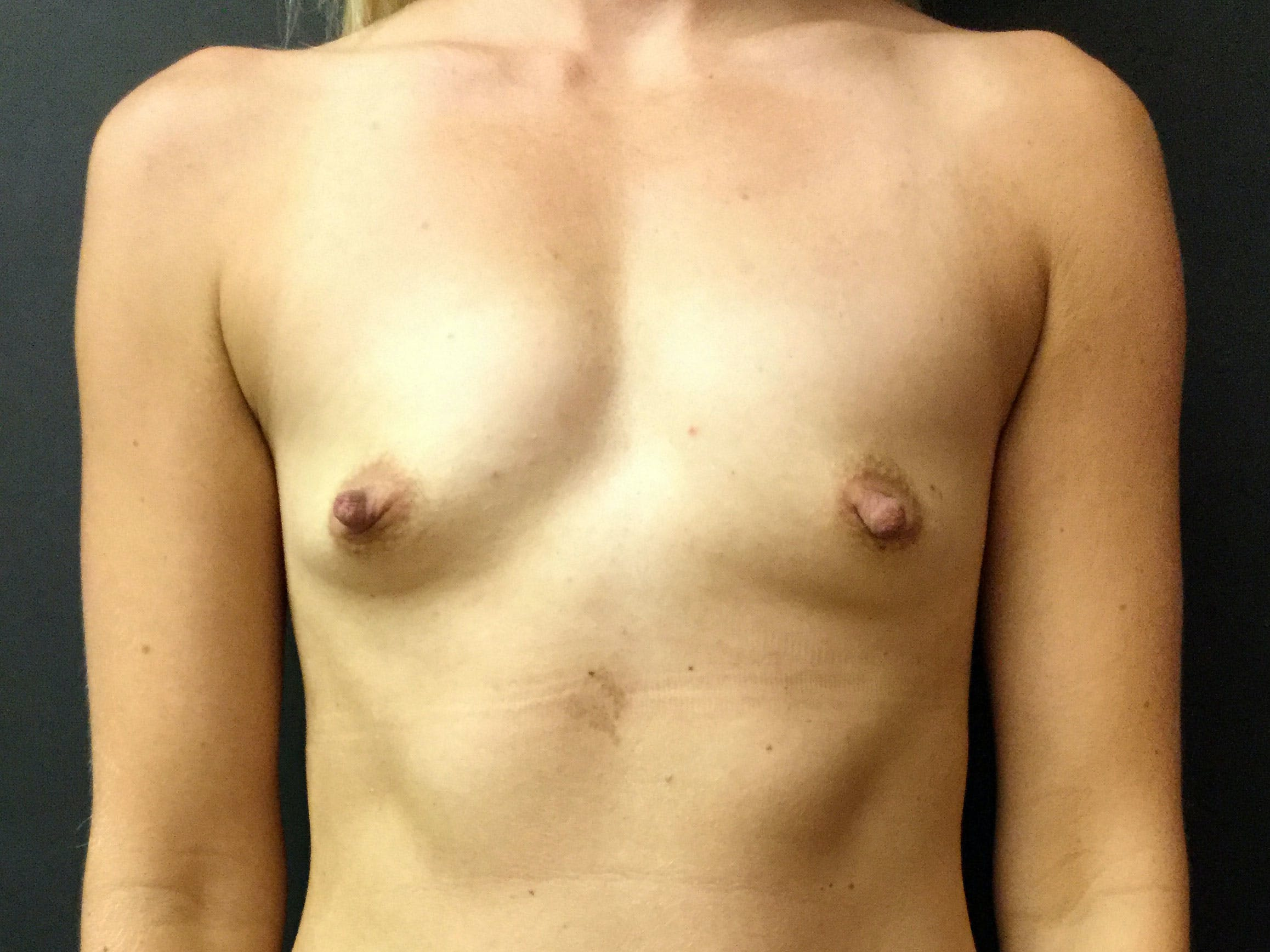 Breast Augmentation Gallery - Patient 56397877 - Image 1