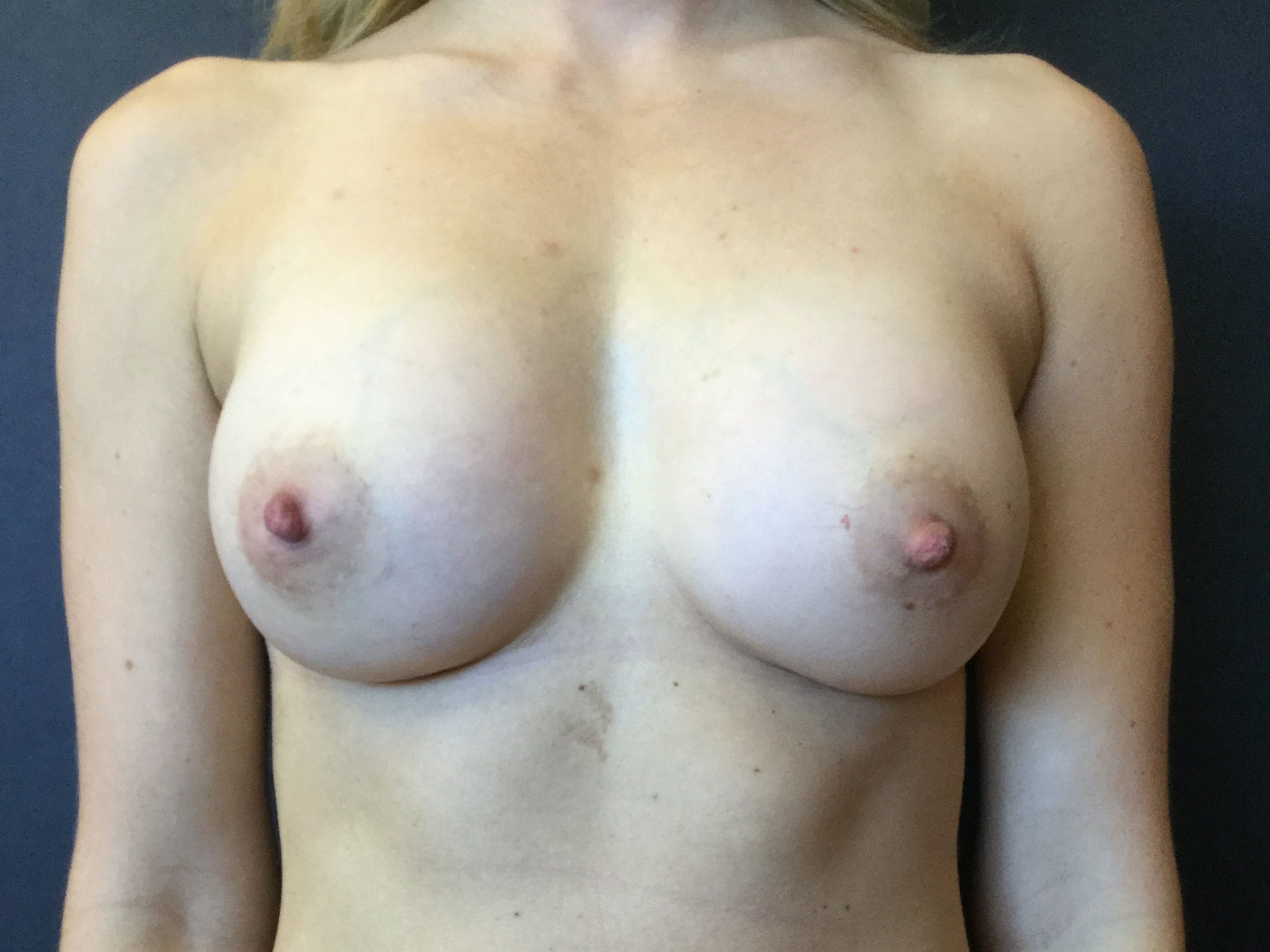 Breast Augmentation Gallery - Patient 56397877 - Image 2