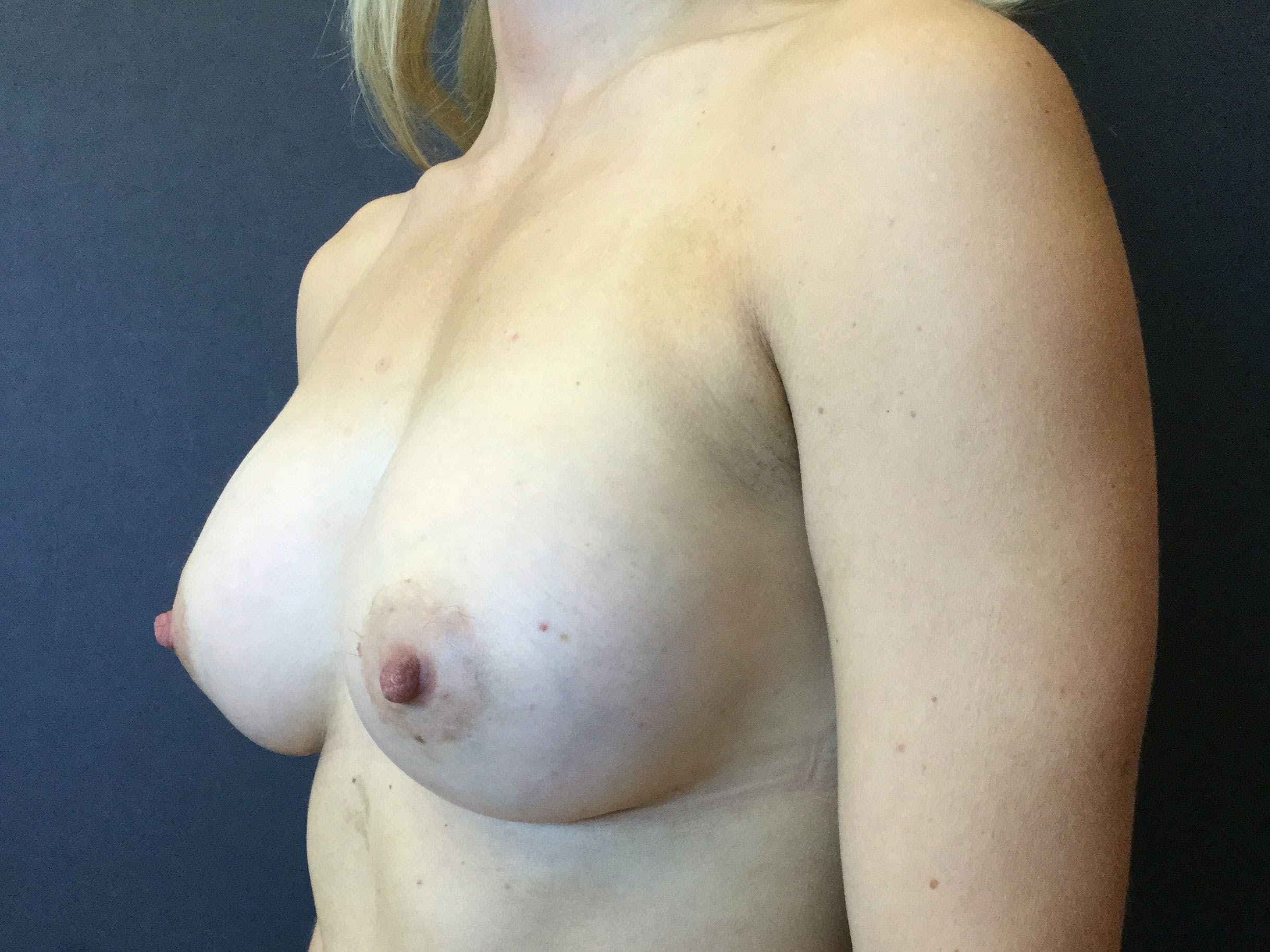 Breast Augmentation Gallery - Patient 56397877 - Image 4