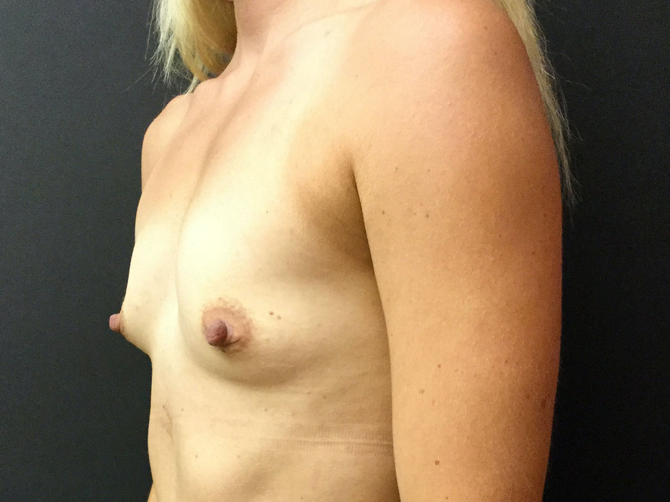 Breast Augmentation Gallery - Patient 56397877 - Image 3