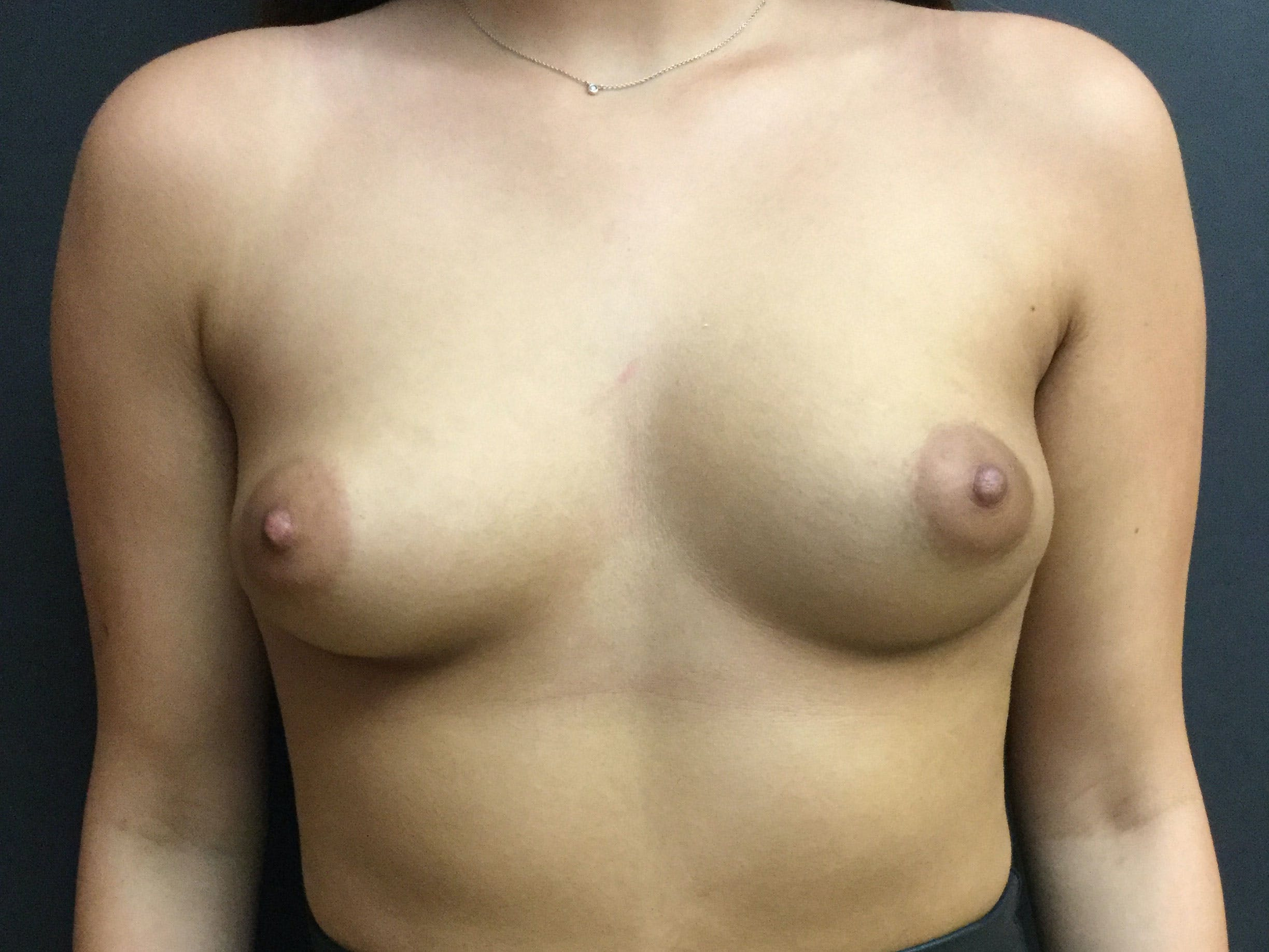 Breast Augmentation Gallery - Patient 56397878 - Image 1
