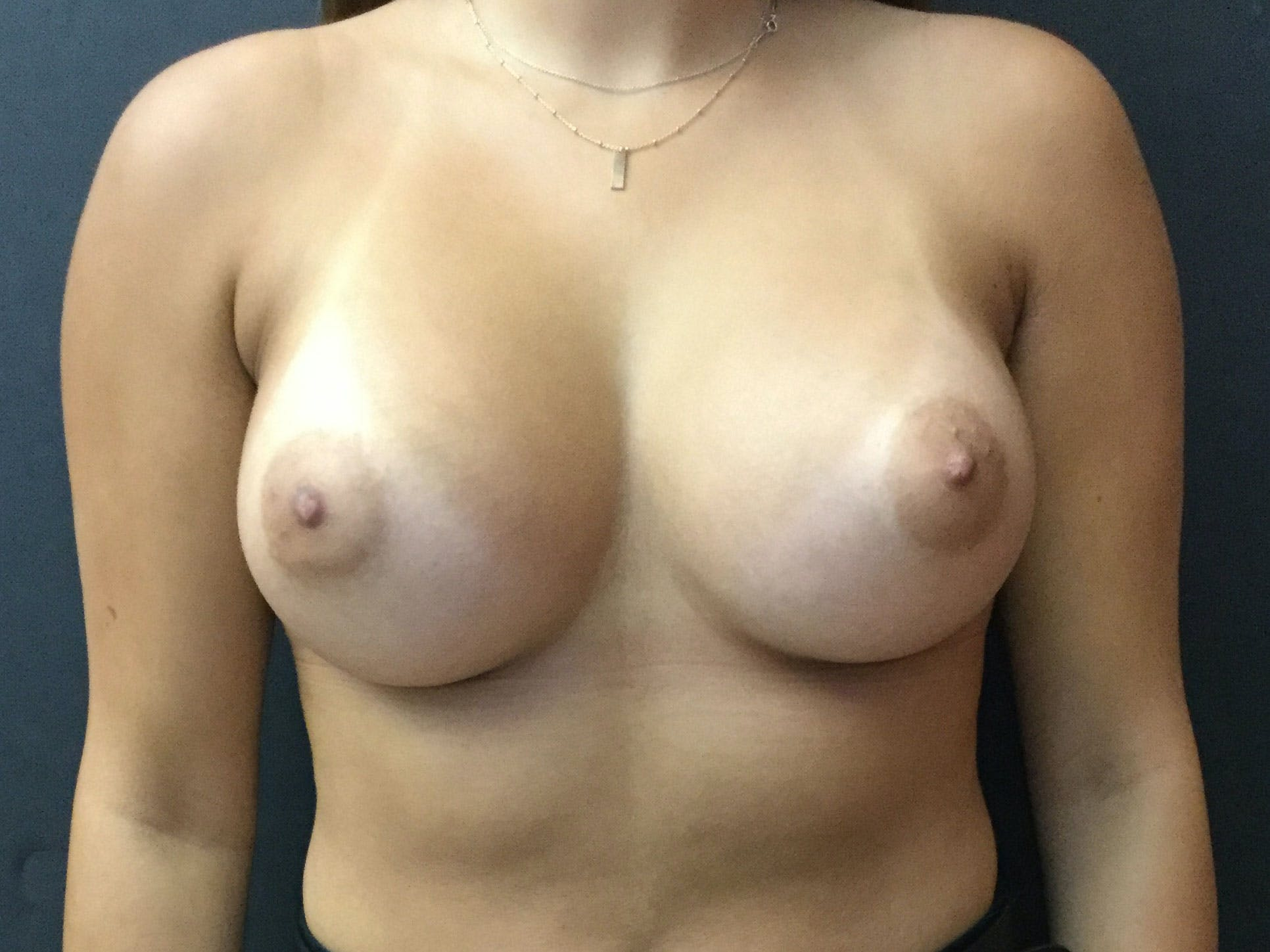 Breast Augmentation Gallery - Patient 56397878 - Image 2