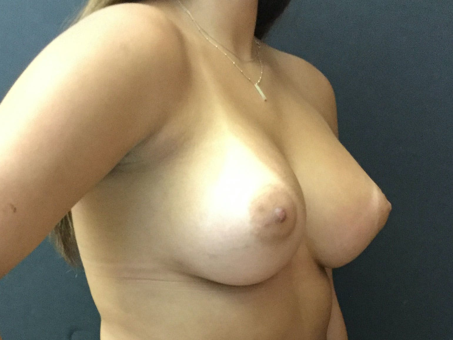 Breast Augmentation Gallery - Patient 56397878 - Image 4