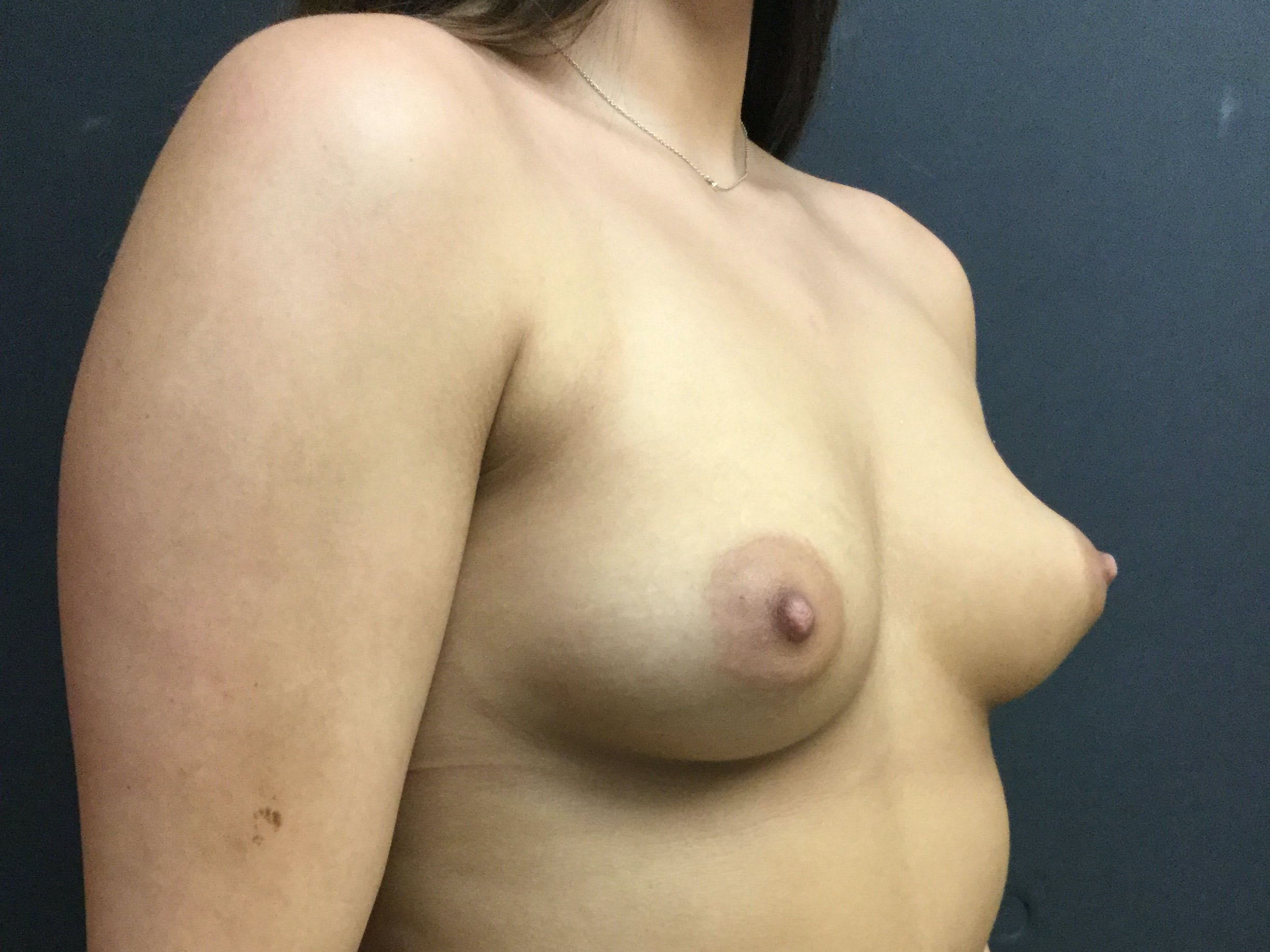 Breast Augmentation Gallery - Patient 56397878 - Image 3