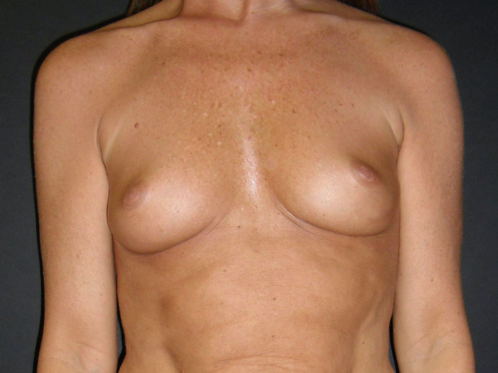 Breast Augmentation Gallery - Patient 56397879 - Image 1