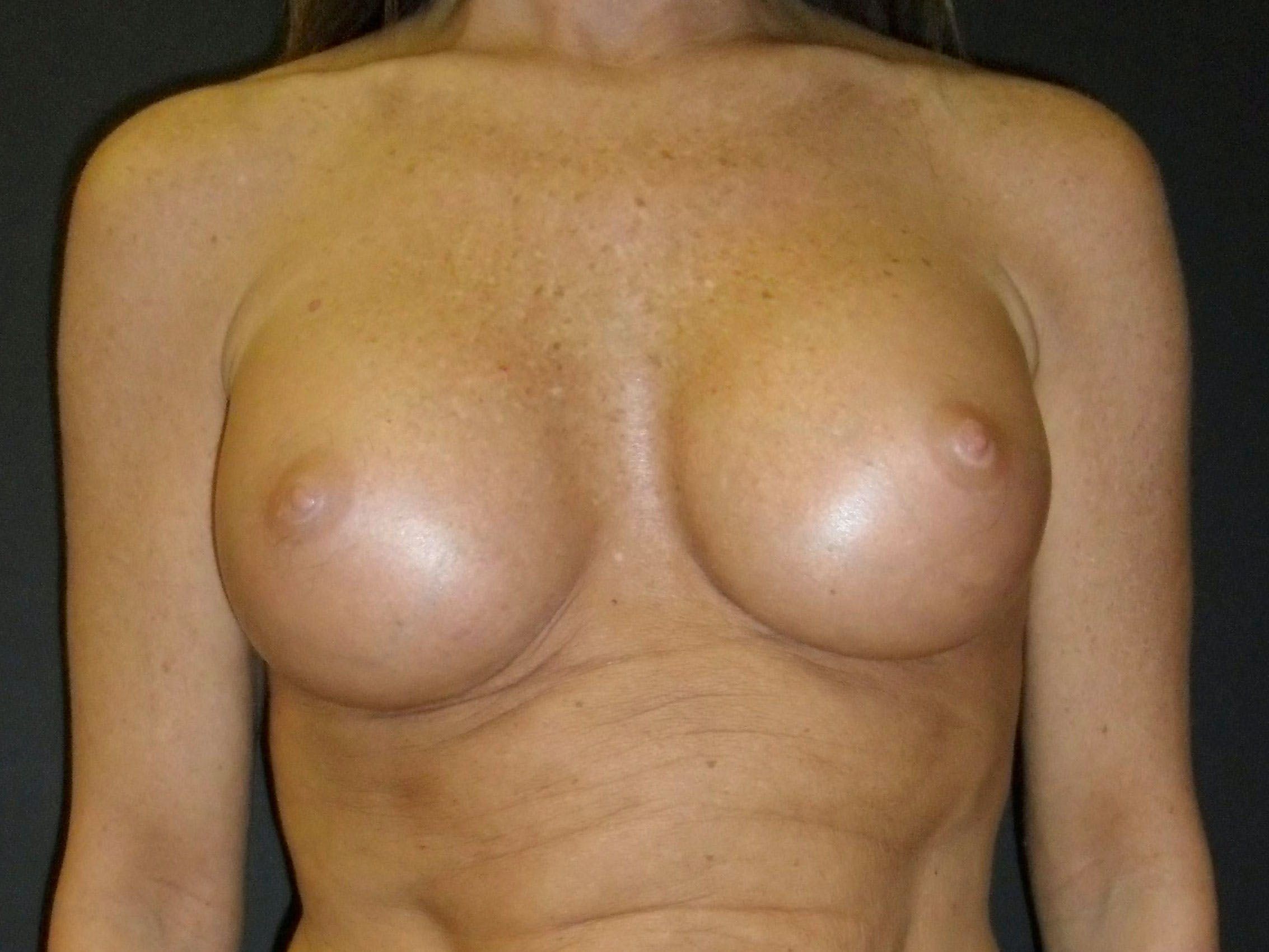 Breast Augmentation Gallery - Patient 56397879 - Image 2