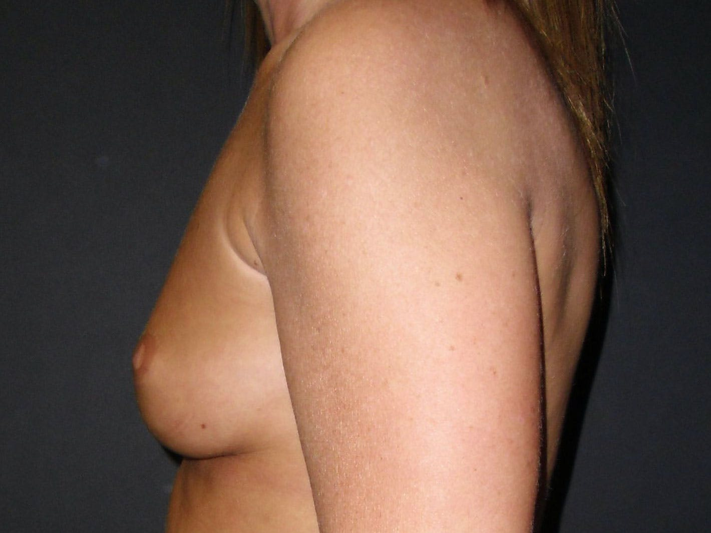 Breast Augmentation Gallery - Patient 56397879 - Image 3