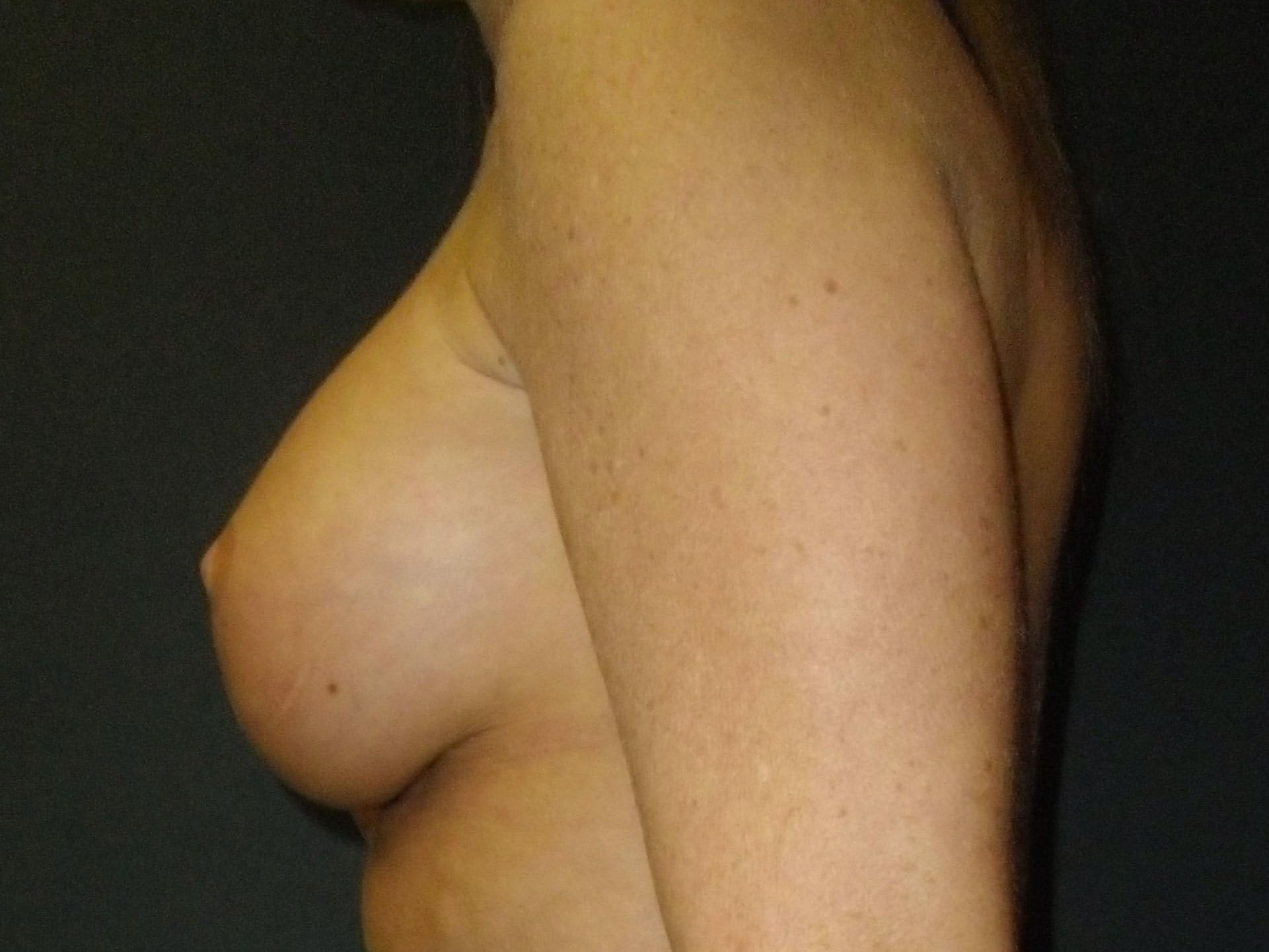 Breast Augmentation Gallery - Patient 56397879 - Image 4