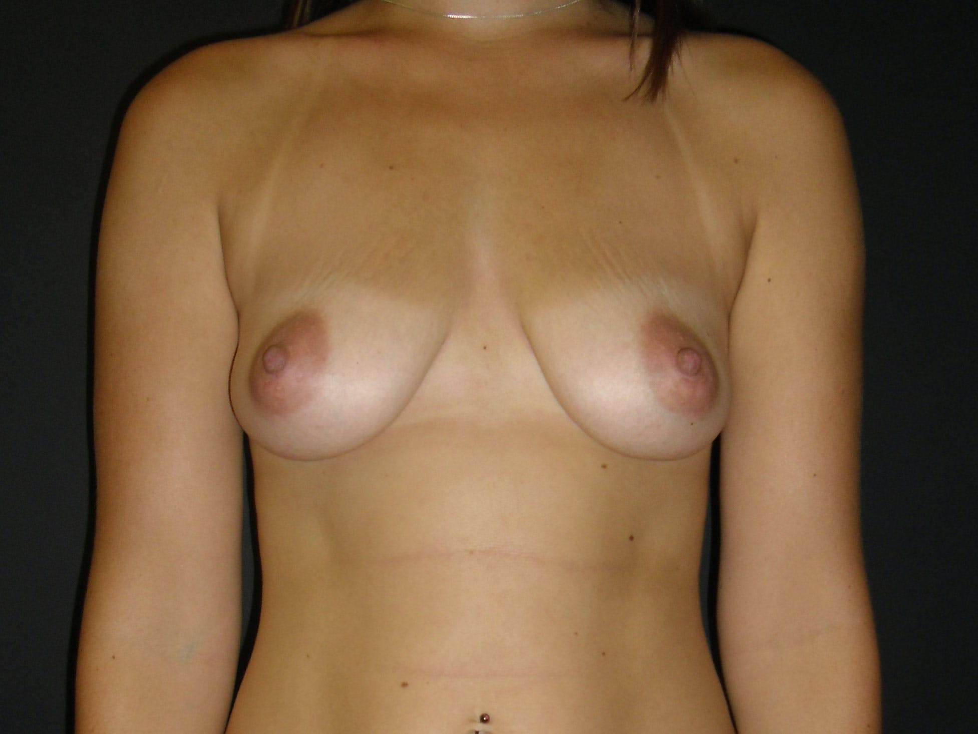 Breast Augmentation Gallery - Patient 56397880 - Image 1