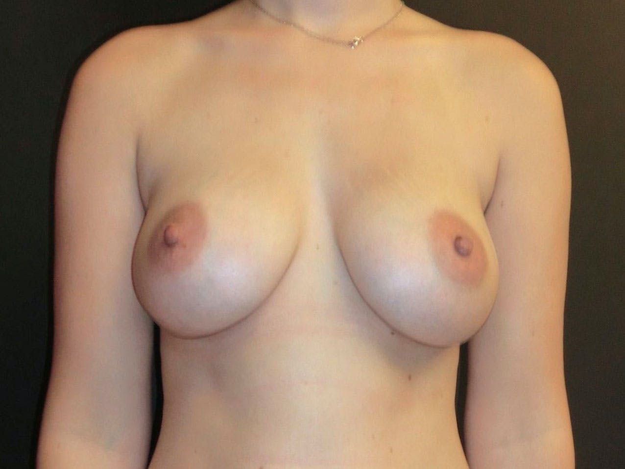 Breast Augmentation Gallery - Patient 56397880 - Image 2