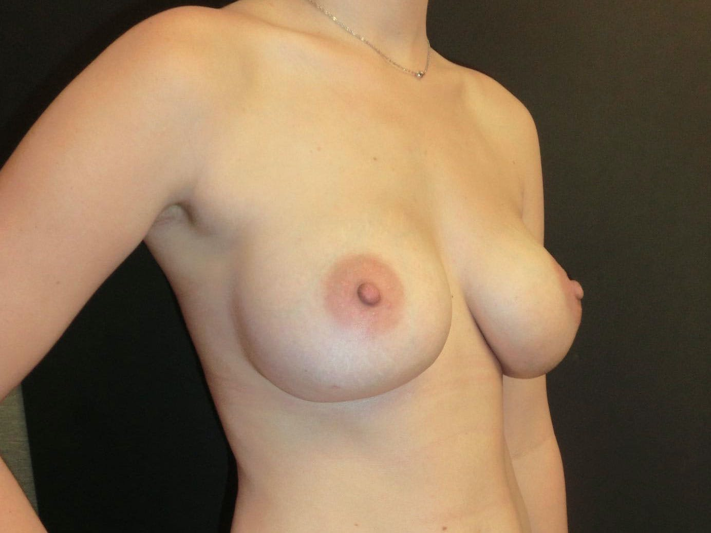 Breast Augmentation Gallery - Patient 56397880 - Image 4
