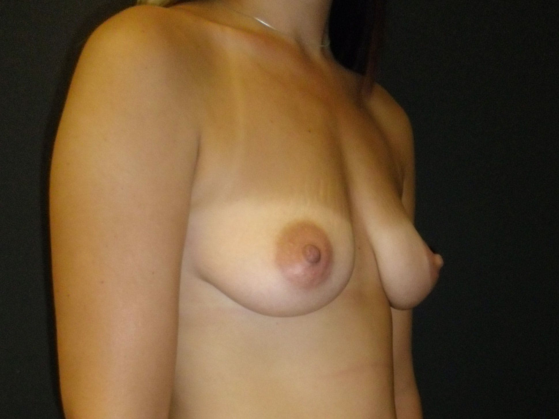 Breast Augmentation Gallery - Patient 56397880 - Image 3
