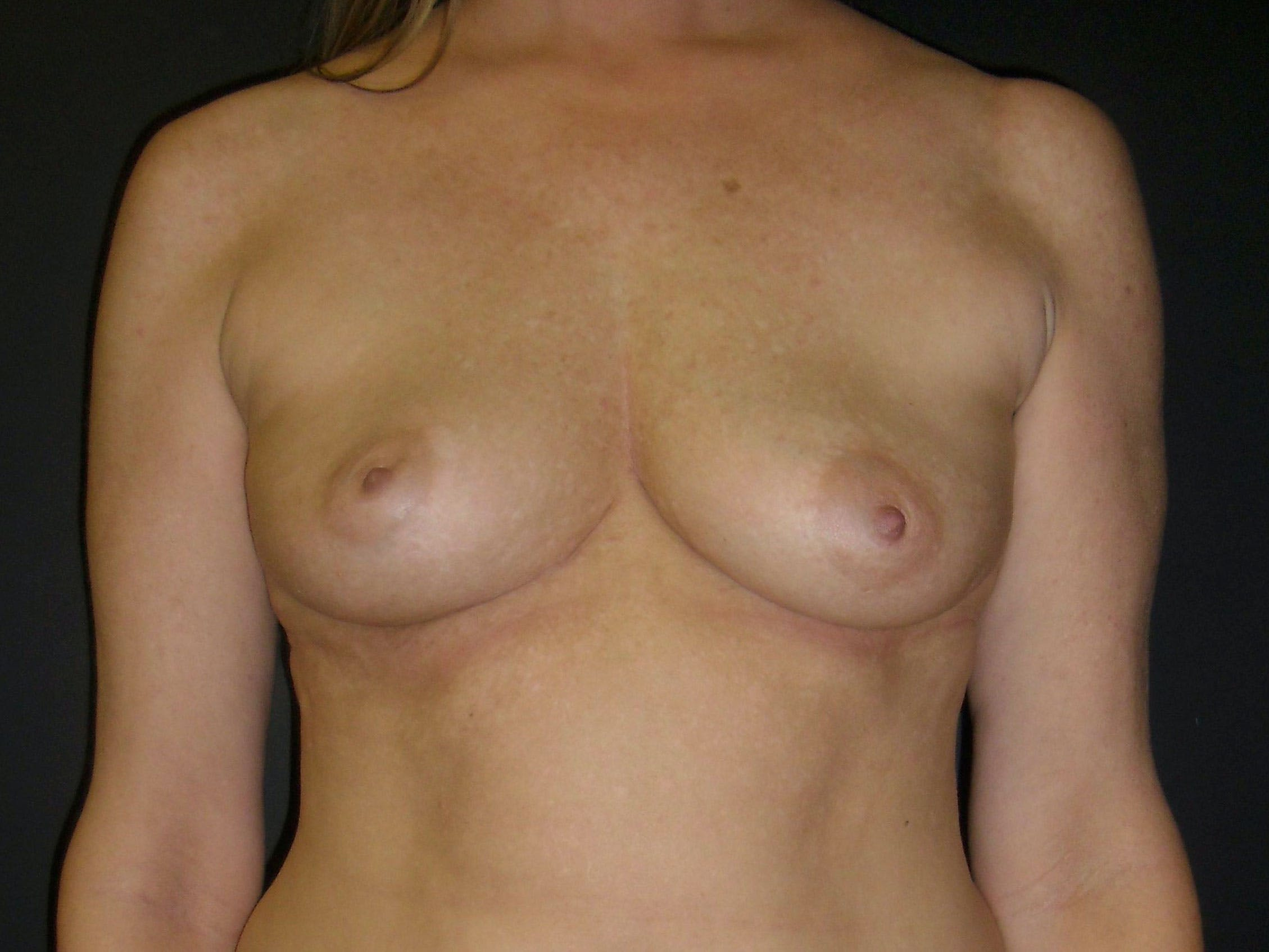 Breast Augmentation Gallery - Patient 56397881 - Image 1